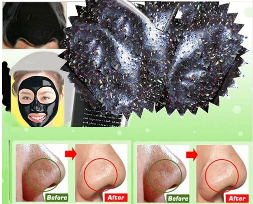 Mask Blackhead Remover Face Head Mask Mud Deep Cleansing Pore Peel Acne Black #TreatmentMask