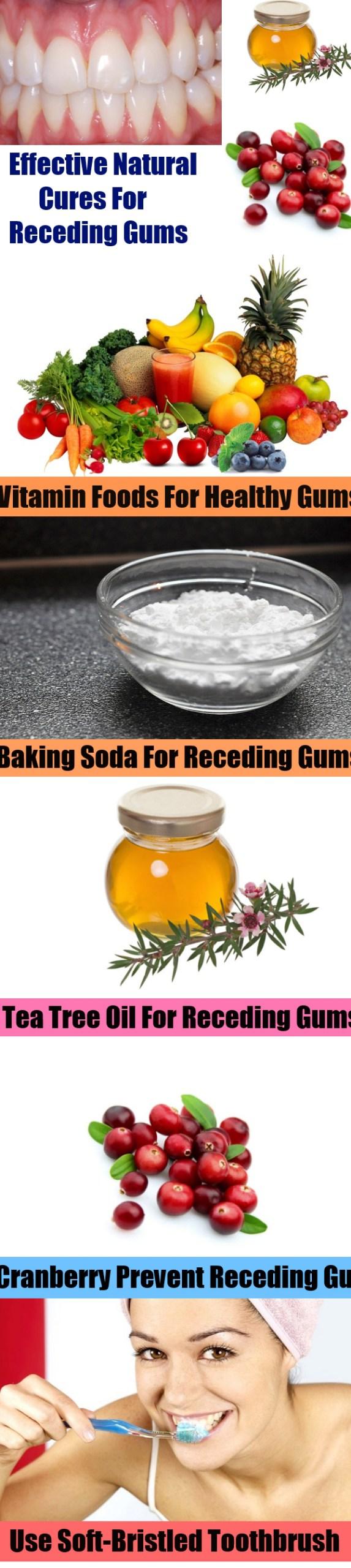 Effective Natural Cures For Receding Gums