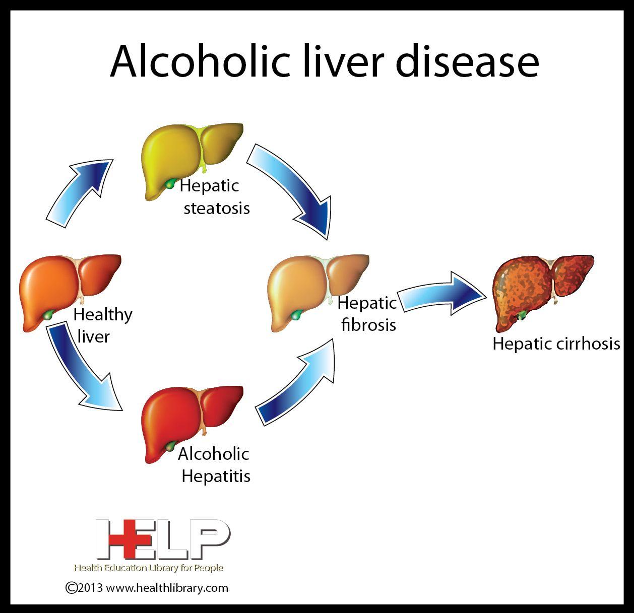 Alcoholic liver disease liver disease nursing