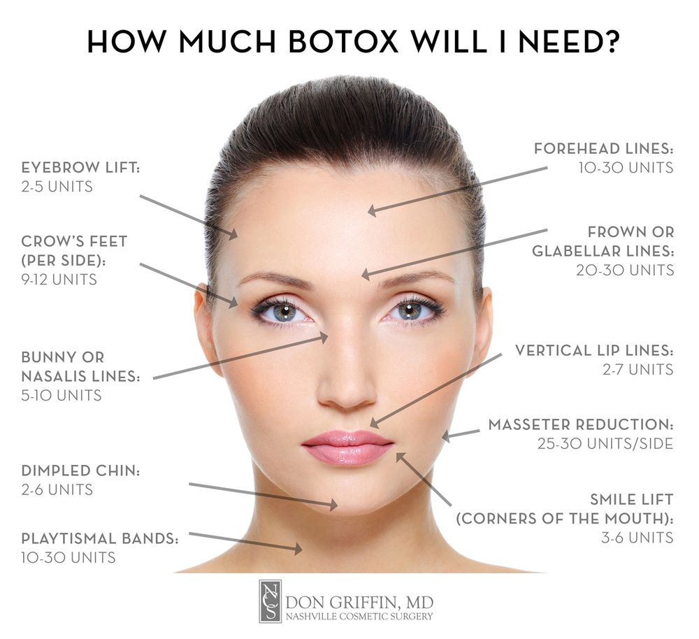 image result for botox injection map botox pinterest botox injections and makeup. Black Bedroom Furniture Sets. Home Design Ideas