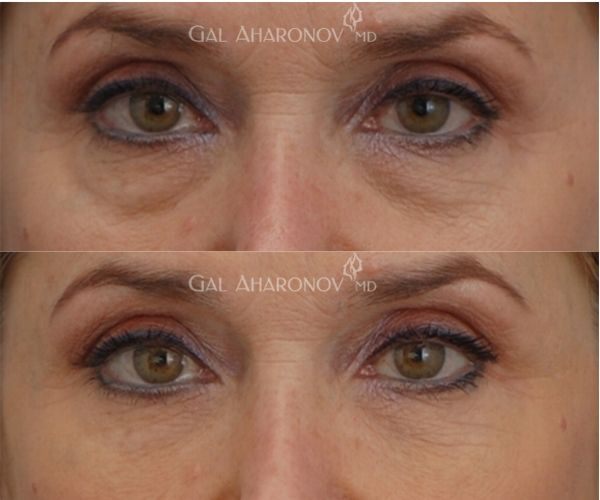 how to stop bags under eyes when smiling