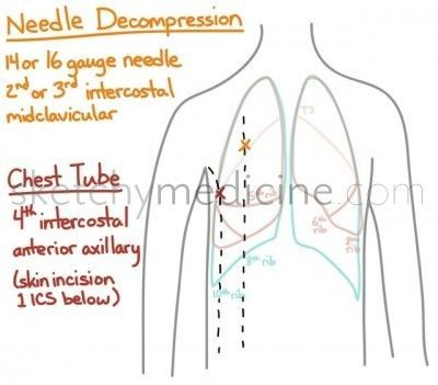 Needle Decompression Ems Respiratory Airway And
