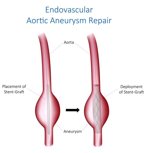 Aortic Aneurysm Surgery - Endovascular AAA repair can be minimally ...