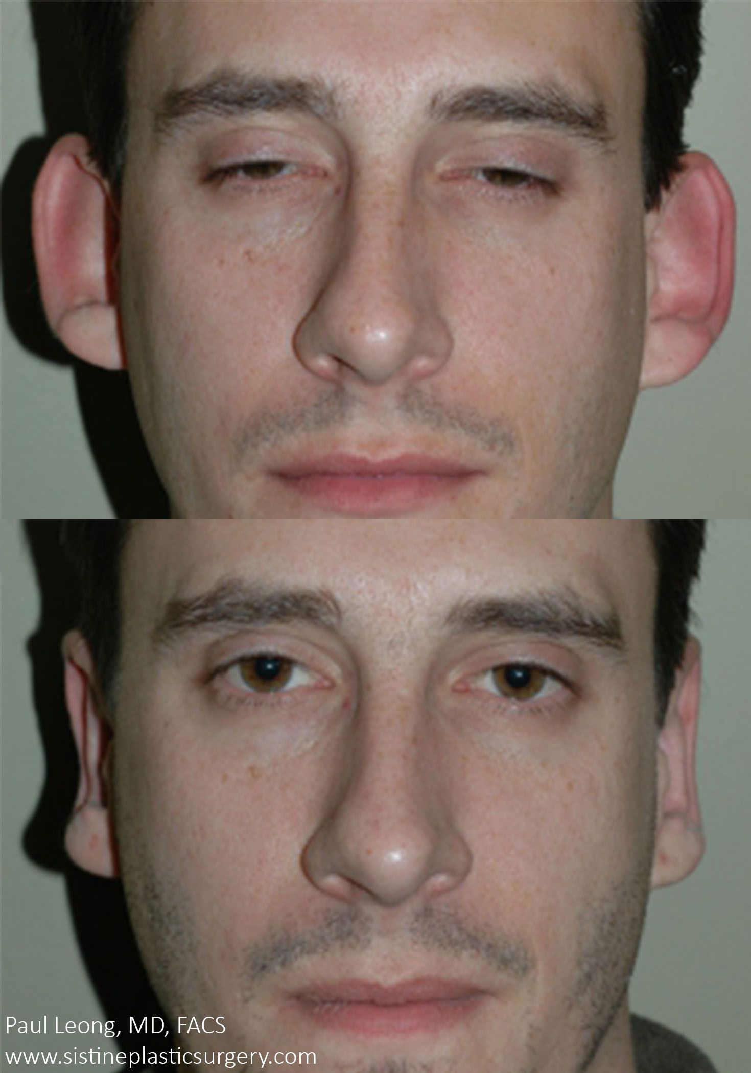 Otoplasty is an operation to correct the ears: description of the procedure, reviews 57