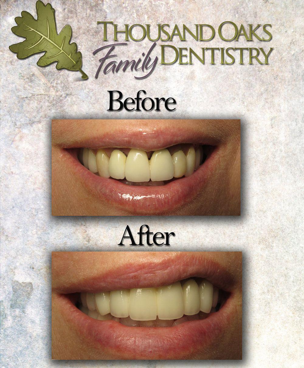 Zirconia Crown and Bridge Replacement Dentistry, Laser