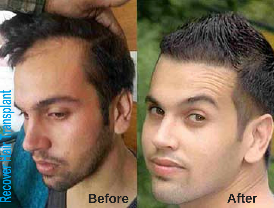 Stressed With Hair Loss Problem No Worries Visit Recover Hair