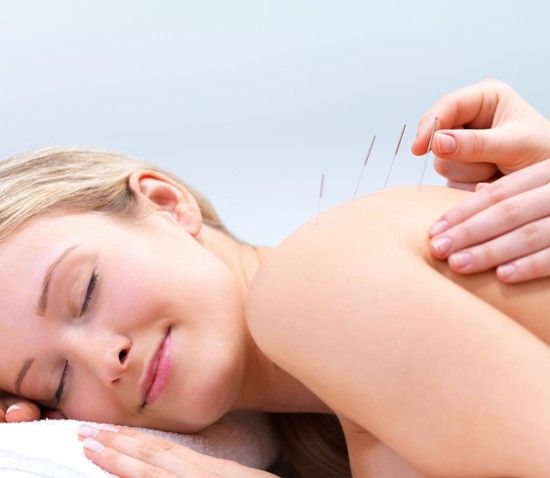 Acupuncture vs. Dry Needling | Womens health magazine ...