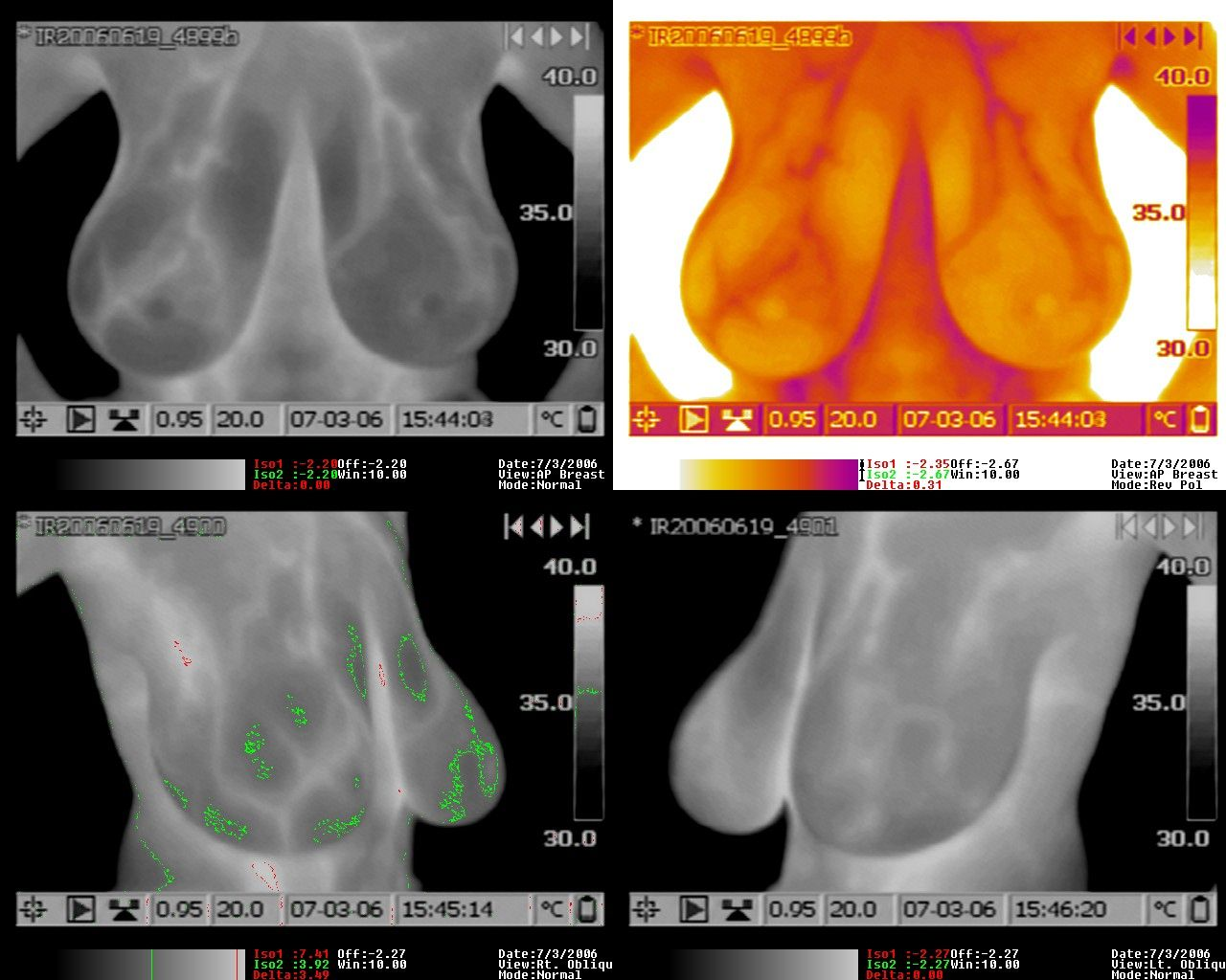 Breast imaging thermography