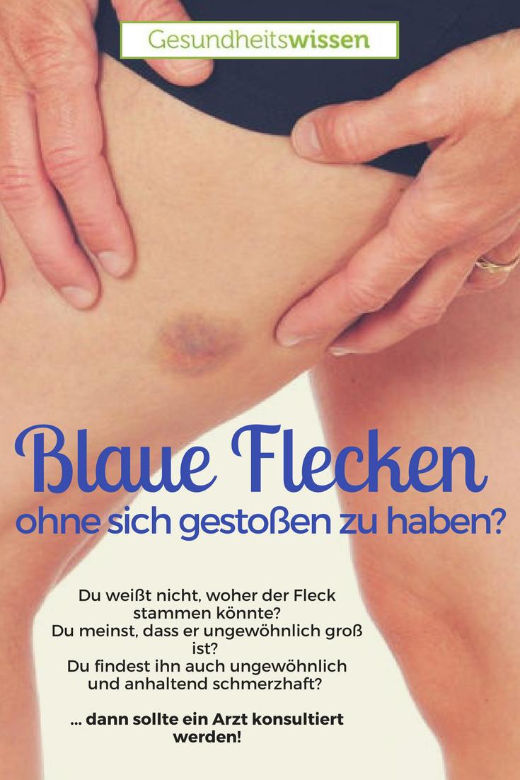 Blauer Fleck Knoten Unter Haut