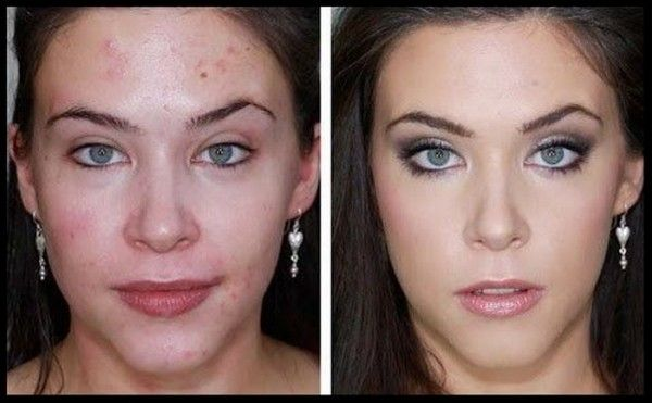 Best Makeup For Acne Scars And Large Pores, Many women have to ...