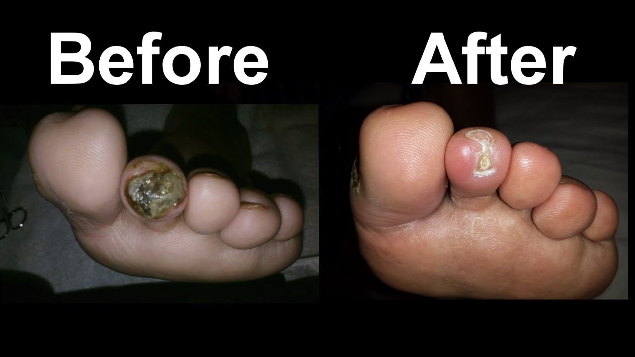 How To Heal A Diabetic Foot Sore Fast
