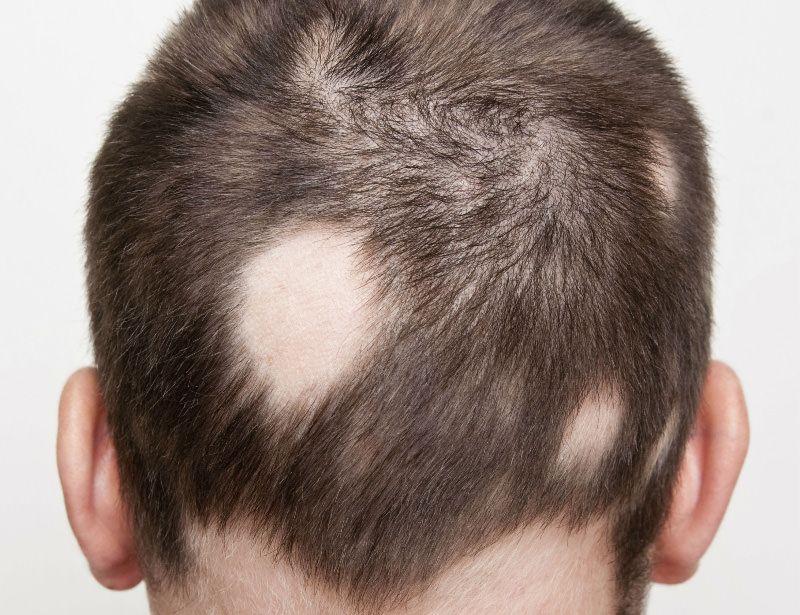 Pin On Hair Transplant