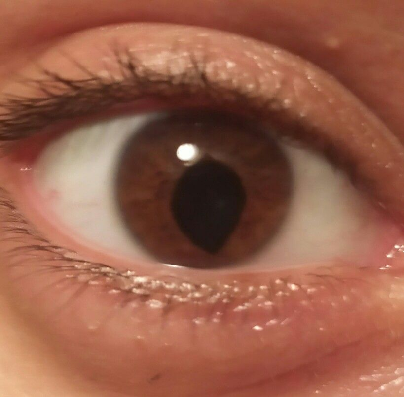 "this is my sisters eye. she has a condition called ""coloboma"" 