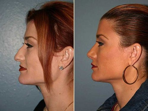 Best Plastic Surgeons For Nose Jobs Nose Job Rhinoplasty Surgeon Nose Surgery