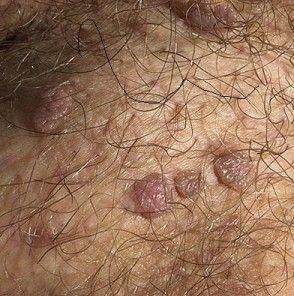 papiloma verruga genital