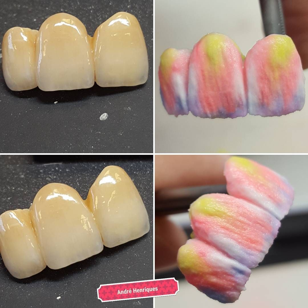 The Build Up And The Result Posted The Result Before But Not The Build Up I Discovered These Phone Pictures A Min Dental Ceramics Dentistry Dental Laboratory