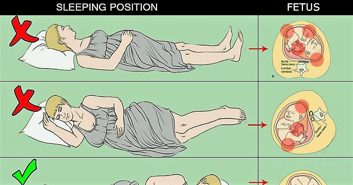 Sleeping Position For Pregnancy Third Trimester Aline Art