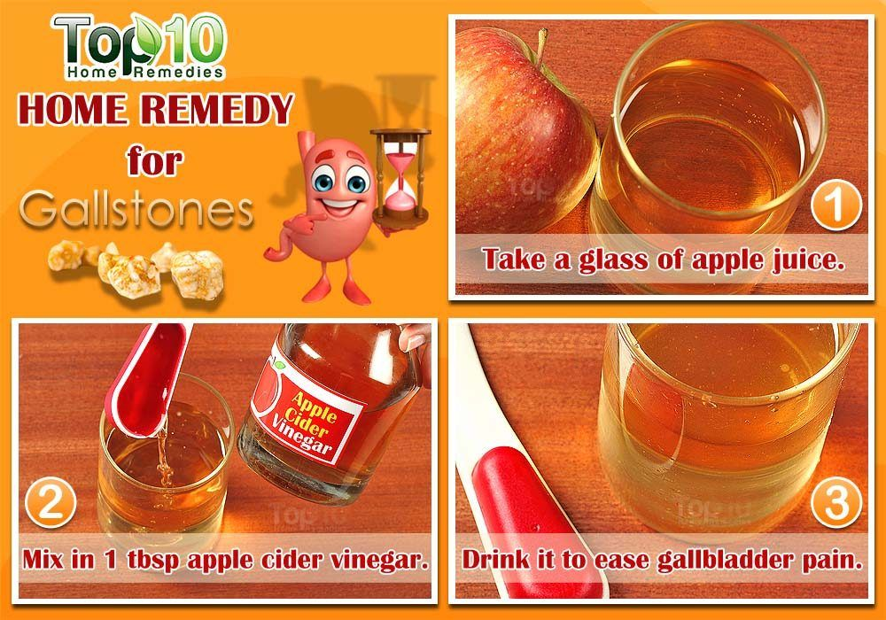 Home Remedies For Gallstones Gallstones Home Remedies