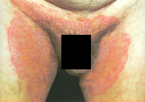 Tinea Cruris: Bothersome Ringworm of the Groin | Grzybica / Tinea