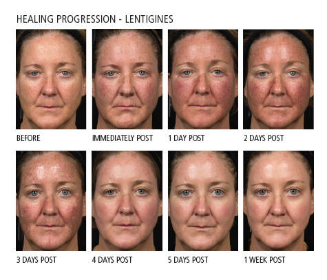 Getting Rid Of Sun Damage Is Easy With The Fraxel Dual Laser