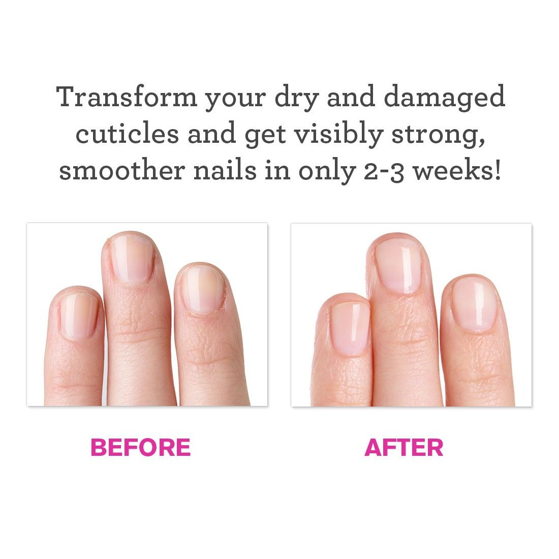 Think I might just try this | Useful hints | Pinterest | Feet care ...