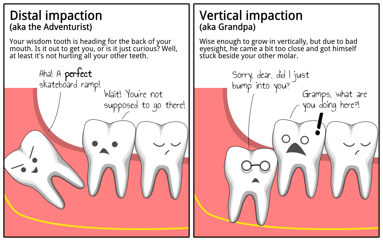 ImpactedTooth‬ Explained! If you're currently experiencing