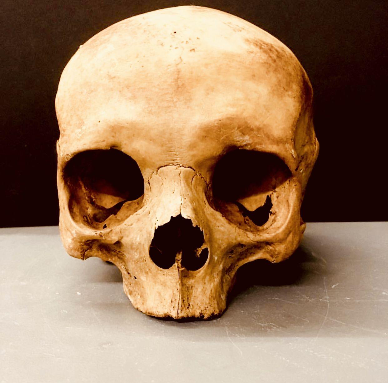 Pin De Derald Hallem En Skull Art Craneo Humano Craneo Calaveras