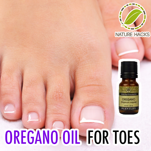 Oregano Oil For Toes   Fitness   Pinterest   Oregano ...
