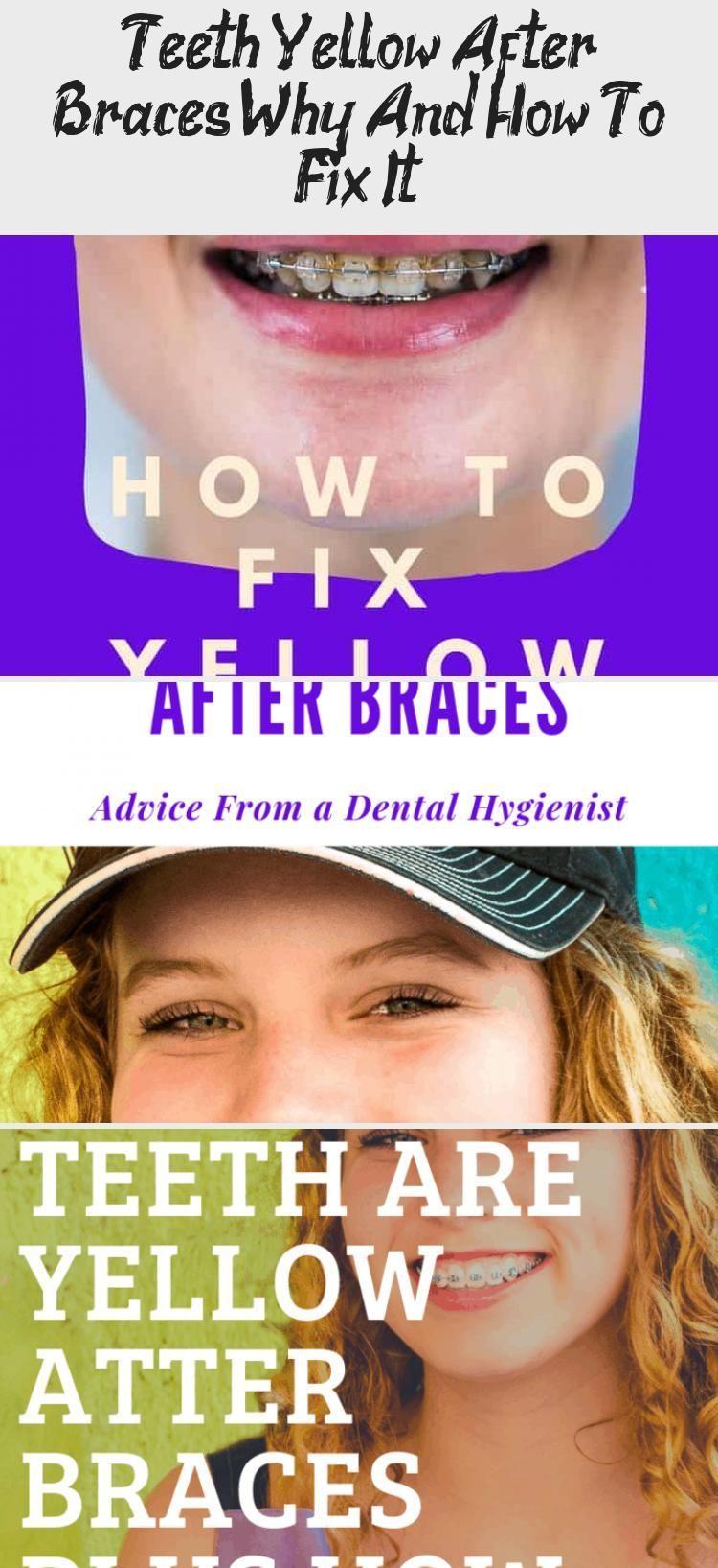 Pin on teethbraces