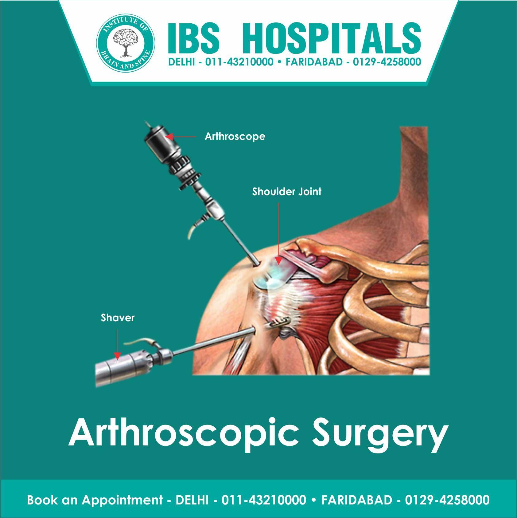 What Is Arthroscopy