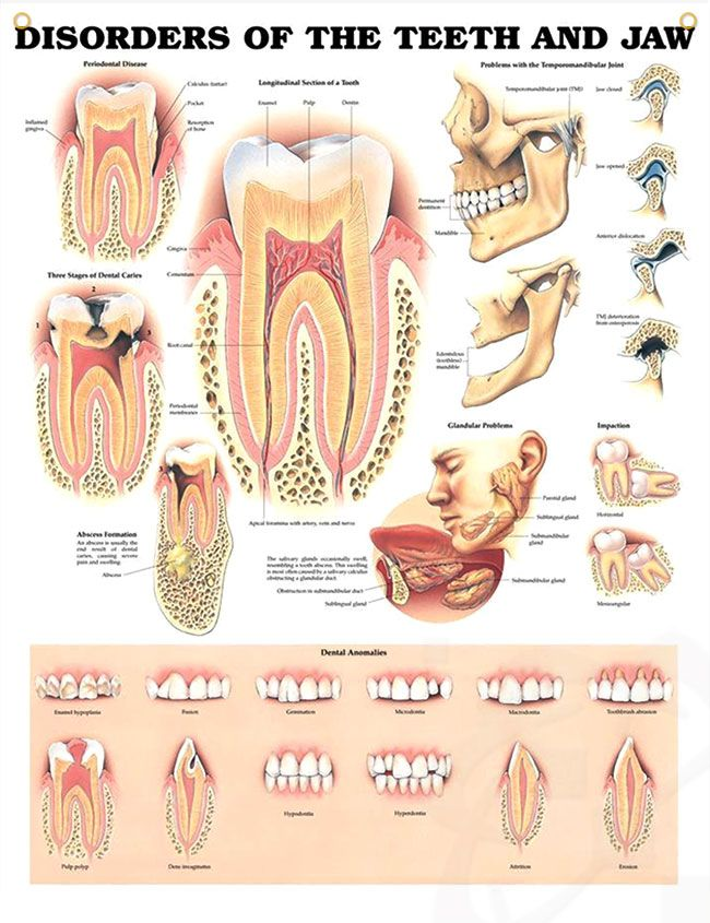 Disorders of The Teeth and Jaw Chart 20x26 | Pinterest | Dental ...