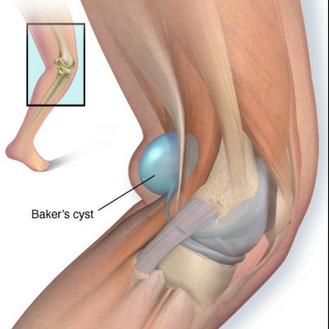 Baker\'s cyst is a fluid-filled cyst that leads to a bulge and degree ...