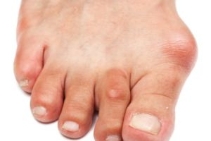 gross!    Google Image Result for http://174.120.240.123/~paul/images/stories/bunions_hammer_toes.jpg