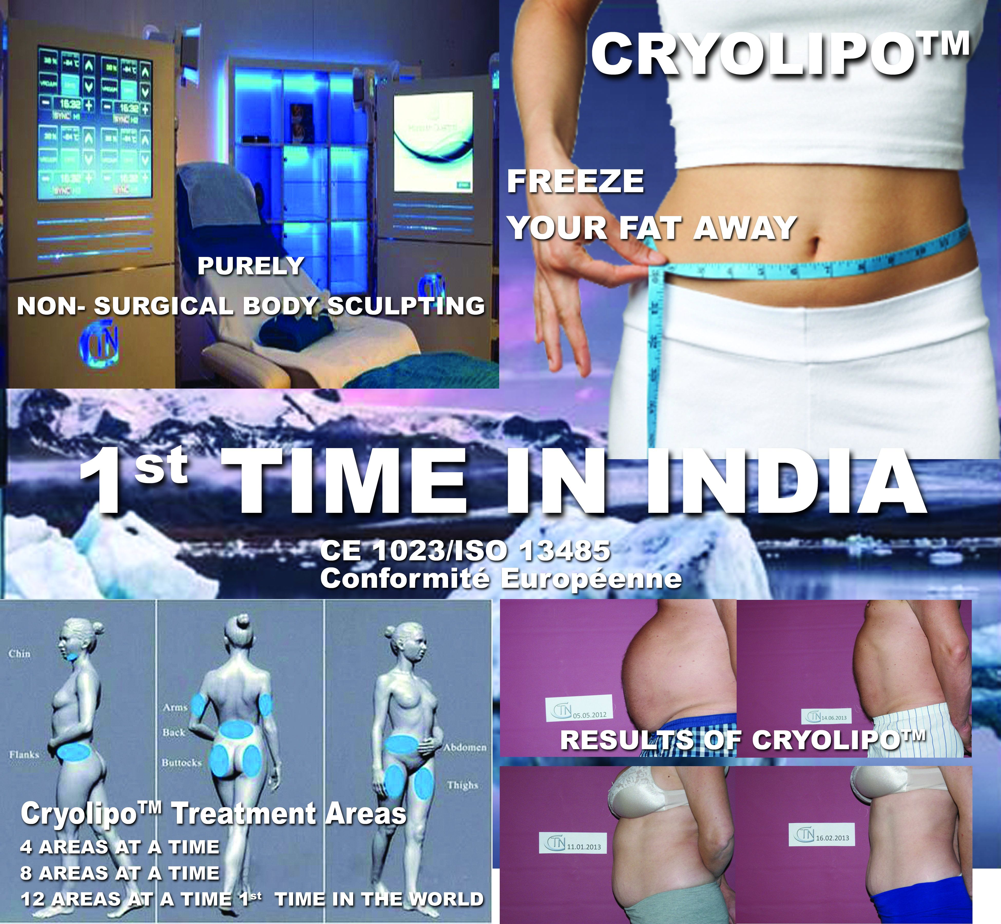 MicroCare - CTN Cryoclinic _ First time in India Non-Surgical Body Sculpting CTN Cryolipo- First time in India CE 1023/ISO 13485 Conformite Europeene