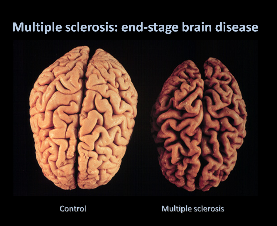 how to fix multiple sclerosis