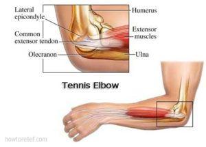 Lateral Epicondylitis Tennis Elbow Causes Symptoms Treatment Diabetes Tennis Elbow Symptoms Tennis Elbow Tennis Elbow Exercises
