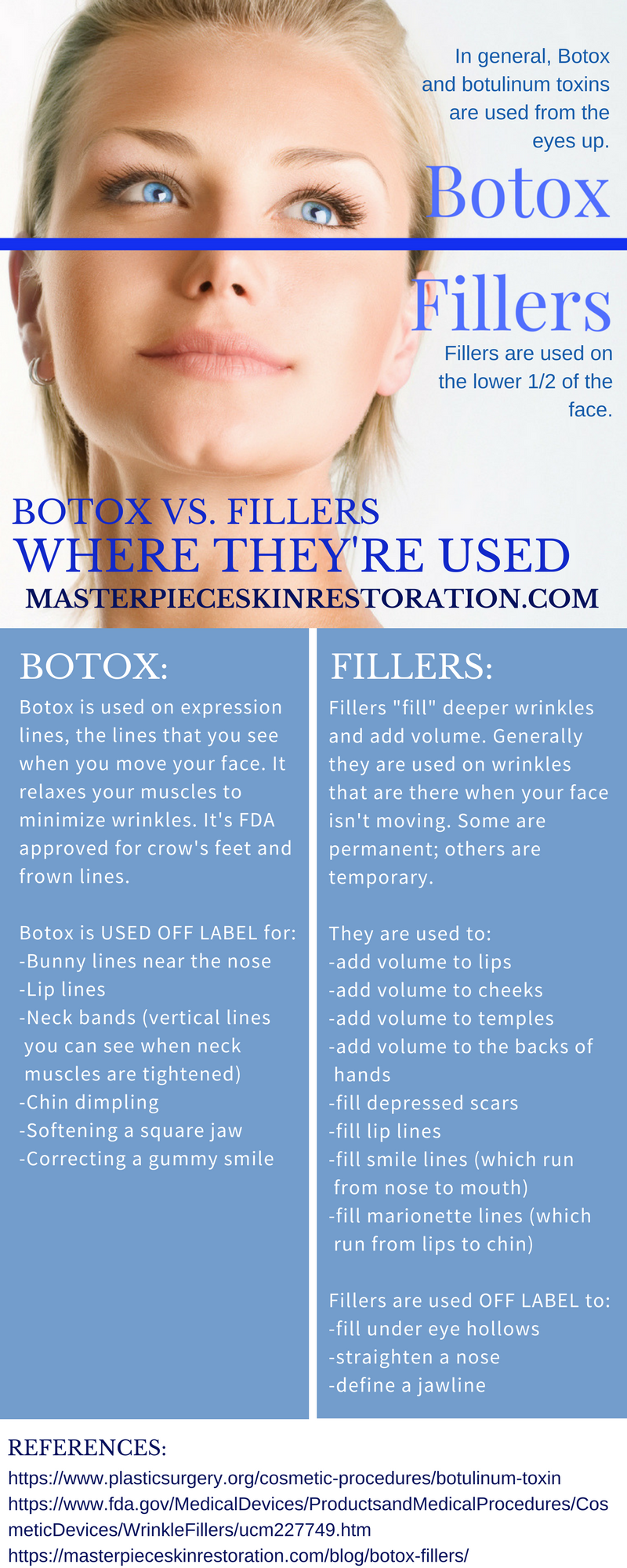 Botox vs. Fillers | Botox fillers, Dermal fillers, Botox lips