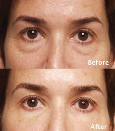 Before And After Restylane Facial Fillers Botox Eyes