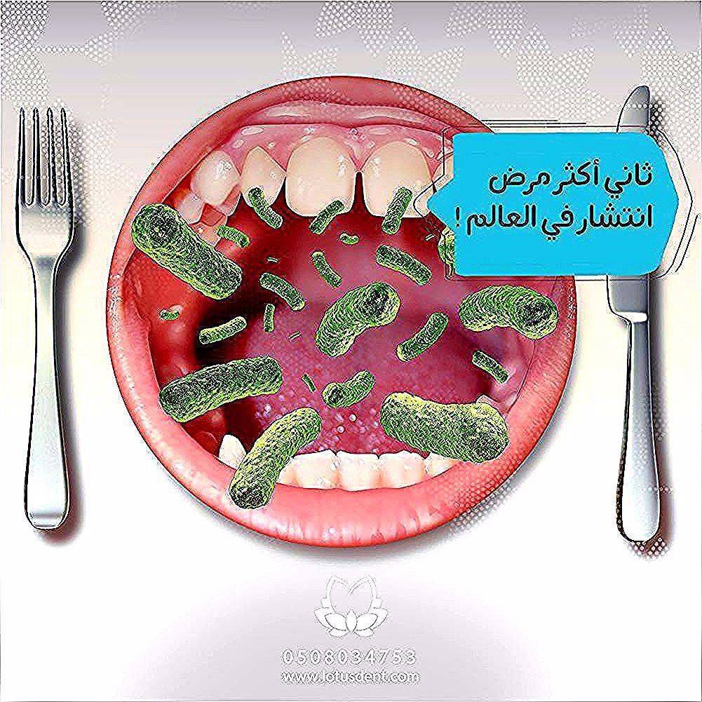 هل تعلم أن تسوس الأسنان هو ثاني أكثر مرض انتشار حول العالم بعد الانفلونزا لوتس طبيب اسنان ابتسامة تجميل الاسنان اسنان ع Sugar Cookie Desserts Food