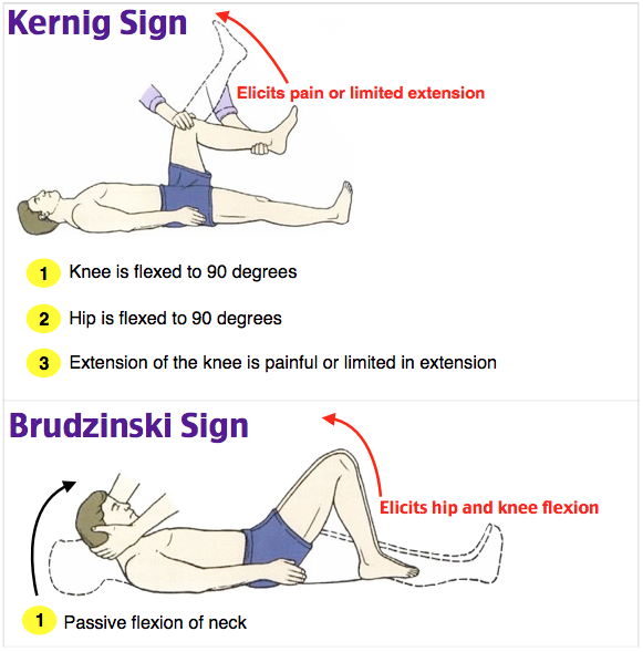 Rosh Review (With images) Kernig sign, Pediatric nursing