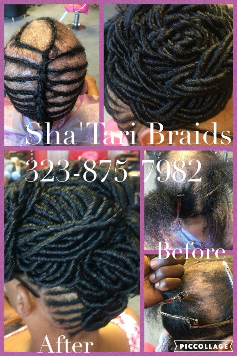 Braids For Alopecia Alopecia Hairstyles Crochet Braids