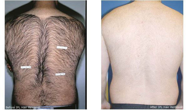 Laser Hair Removal Before And After For Men Hair Removal