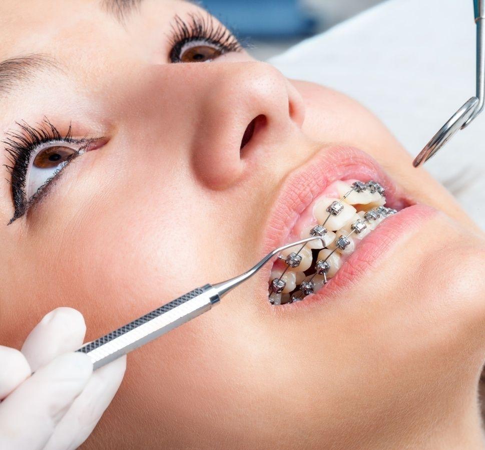 how do braces work Dental braces, Dental crowns