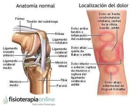 Causa, síntomas y tratamiento de la Pata de Ganso | Pinterest | Medical