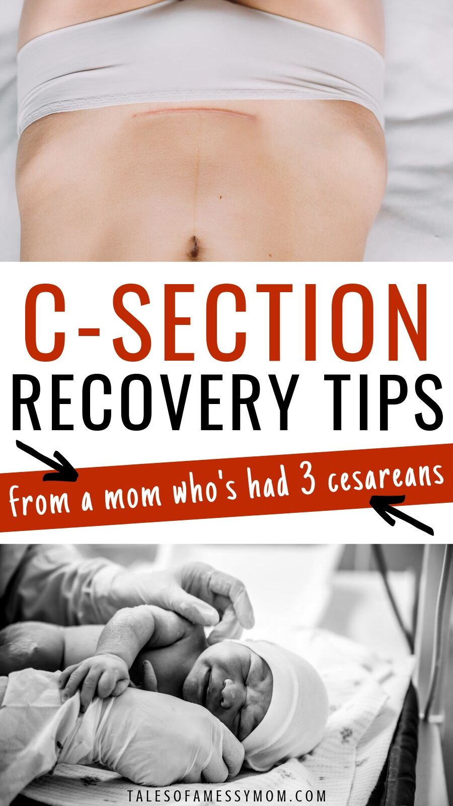 C-section recovery tips for healing after a cesarean. c ...
