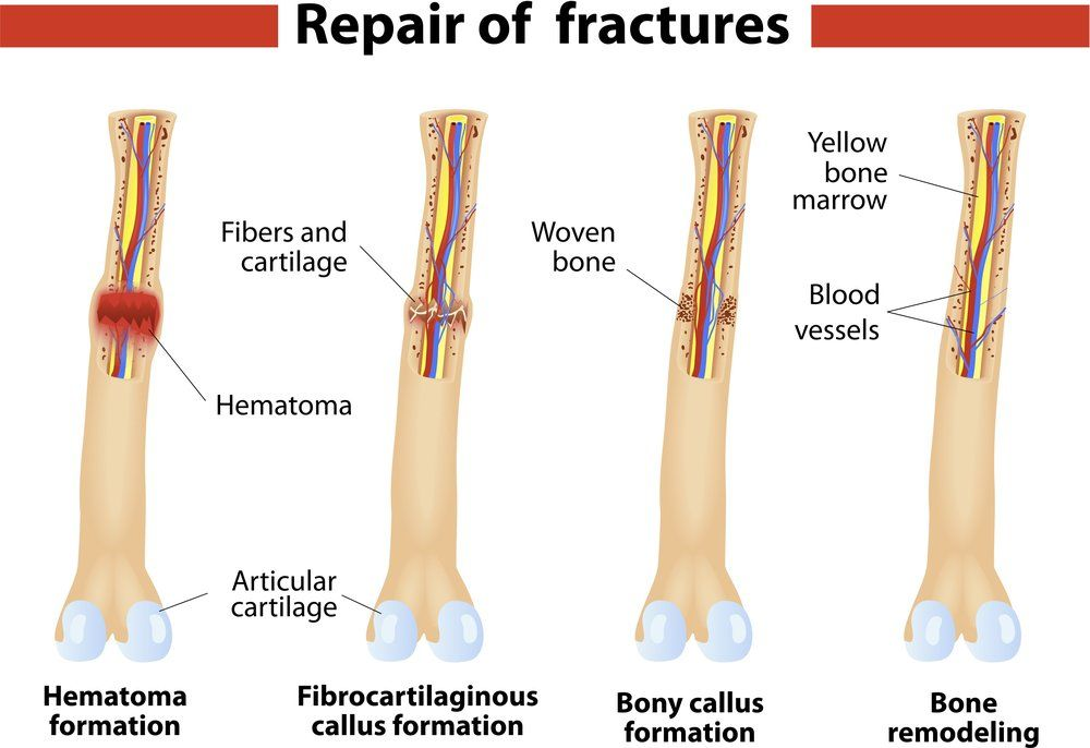 Fracture of the Proximal Tibia