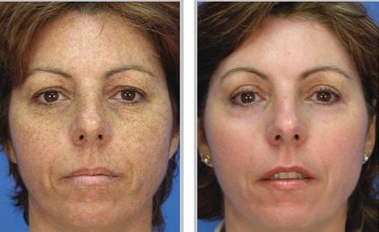 Foto facial brown spots