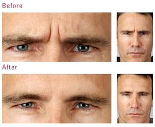Facial Exercises For A Younger Look And The Ultimate Non Surgical Facelift DIY