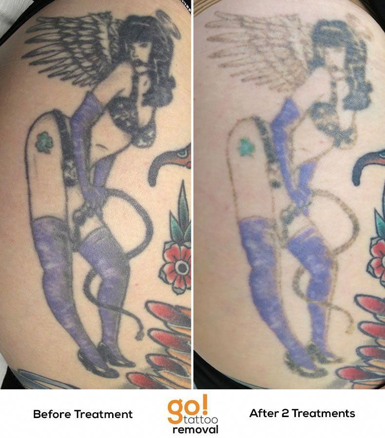 Do You Want Your Tattoo Removed The Laser Way? Faded