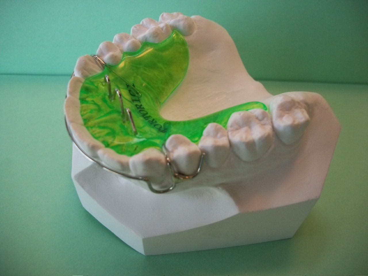 Pin by Bright Inspired Dentistry on Cool Retainers
